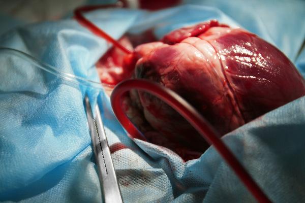 A doação de um coração pode ser responsável por salvar a vida de uma pessoa com insuficiência cardíaca grave.