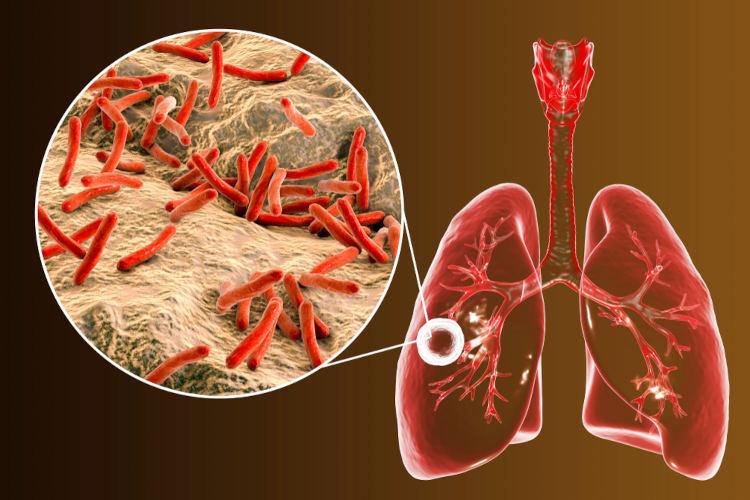 A tuberculose é causada por bactérias que atingem, principalmente, os pulmões.