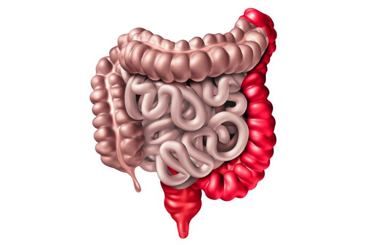 A retocolite ulcerativa é uma inflamação que afeta o intestino grosso.