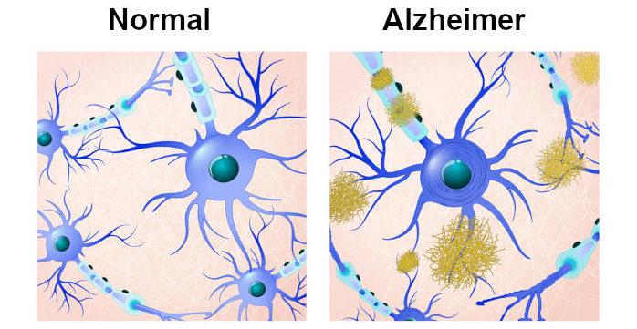 No Alzheimer observa-se algumas alterações cerebrais, como o depósito da proteína β-amiloide e emaranhados neurofibrilares.