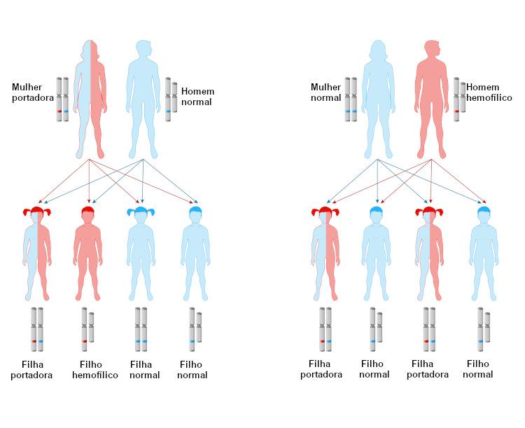 Veja algumas situações que podem levar ao nascimento de filhas portadoras e filhos hemofílicos.