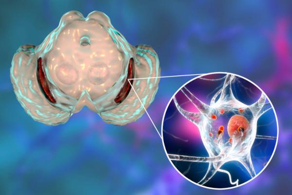 Na doença de Parkinson, observa-se uma perda progressiva dos neurônios dopaminérgicos.