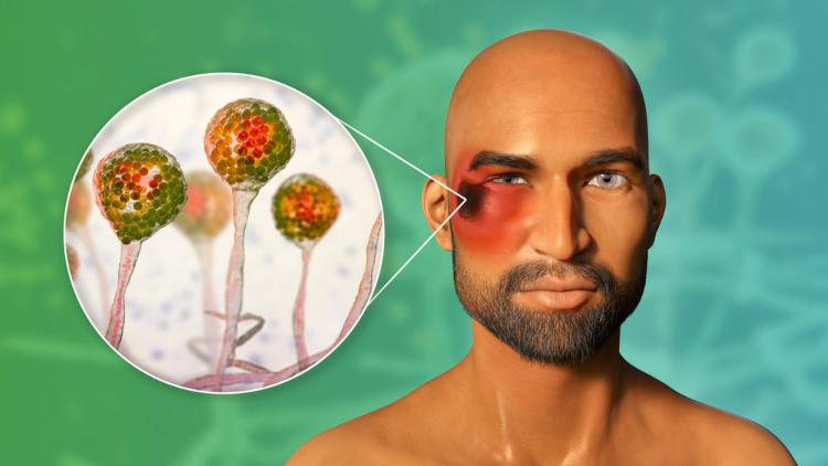 A mucormicose é uma doença que pode causar necrose da pele e comprometimento do sistema nervoso central.