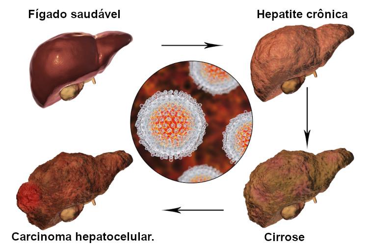 Esquema ilustrativo de fígados acometidos por hepatite crônica, cirrose e carcinoma hepatocelular.