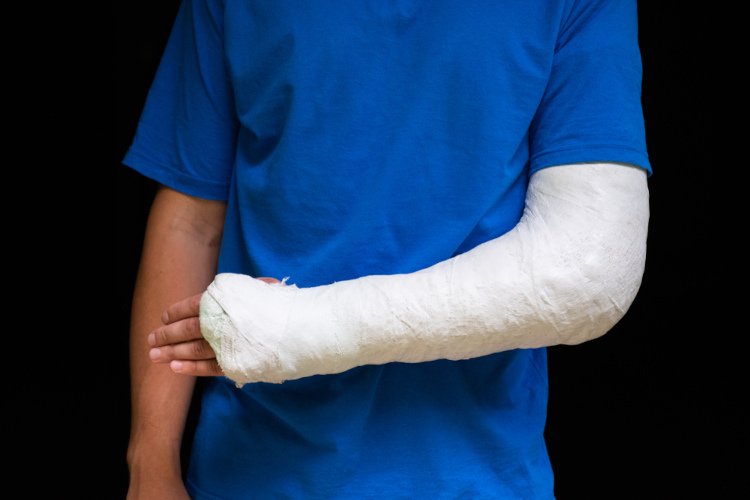 Homem com braço envolvido em gesso médico.