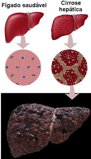 Ilustração de fígado com cirrose hepática em virtude do consumo excessivo de álcool