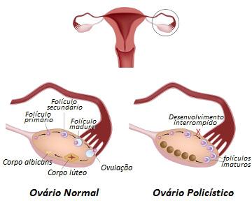Verifique a diferença entre um ovário normal e um ovário policístico