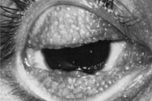 Tracoma: doença causada pela Chlamydia trachomatis.