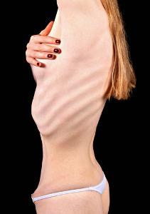 A anorexia pode provocar graves problemas físicos e mentais