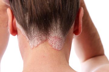 A psoríase é uma doença inflamatória caracterizada pela hiperproliferação queratinocítica