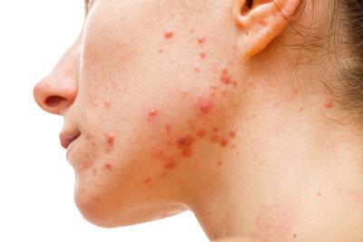 A acne é um problema que afeta diretamente o psicológico do paciente.