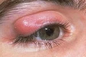 Inflamação nas pálpebras – Terçol ou Calázio?
