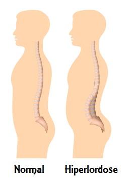 Desenho esquemático representando uma hiperlordose lombar
