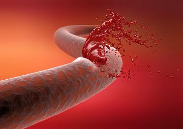 A hemorragia ocorre como resultado de lesões nos vasos sanguíneos