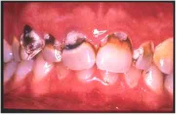 Escovação precária, falta de flúor em cremes dentais e na água, e falta de visitas ao dentista são os principais causadores das cáries.