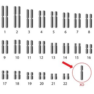 Observe o cariótipo de uma mulher com síndrome de Turner com a ausência de um cromossomo sexual