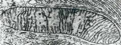 Mitocôndria visualizada ao microscópio óptico.