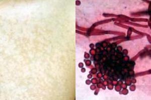 À esquerda, lesão típica da pitiríase, causada pela Malassezia furfur, à direita.