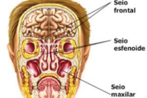 A sinusite ocorre em virtude da inflamação dos seios da face.