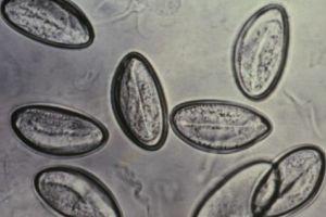 O que e oxiurose ( enterobiose ),