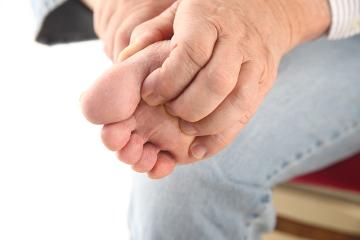 O bicho-de-pé pode causar muita coceira e dor