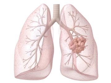 Resultado de imagem para tratamento de cancer no pulmao