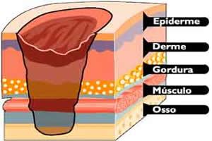 Esquema mostrando as camadas da pele atingidas por uma queimadura