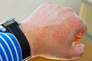 A dermatite de contato é uma reação inflamatória da pele em resposta a algum agente externo