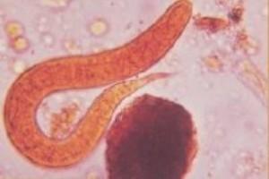 Strongyloides stercoralis – parasita intestinal do homem.