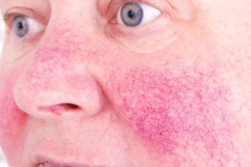Na imagem, podemos observar a presença de vasos finos e dilatados na pele