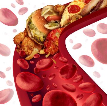 Altos índices de colesterol podem desencadear doenças coronarianas