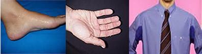 A hiperidrose é uma disfunção que ocorre no sistema nervoso da pessoa