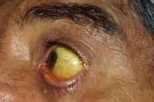 Icterícia: sintoma típico das hepatites.