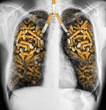 O cigarro é uma das principais causas do enfisema pulmonar