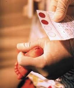 Através do teste do pezinho é possível diagnosticar algumas doenças