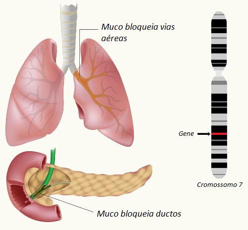 Na fibrose cística, observa-se a produção de um muco mais espesso que o normal