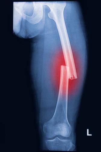 A quebra de um osso é denominada fratura